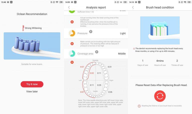 Xiaomi Oclean X Pro elektromos fogkefe teszt 14